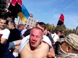 У здания одесской обладминистрации избили Шуфрича, его охрана стреляла (ВИДЕО, обновлено)