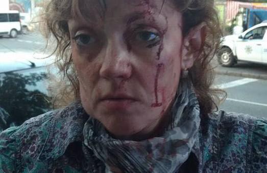 В центре Одессы напали на активистку