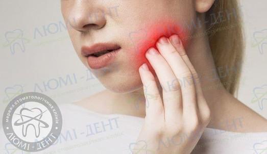 Что делать, если опухла щека после удаления зуба?